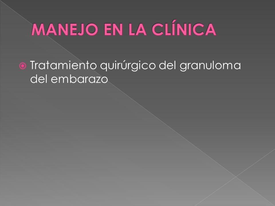  Tratamiento quirúrgico del granuloma del embarazo
