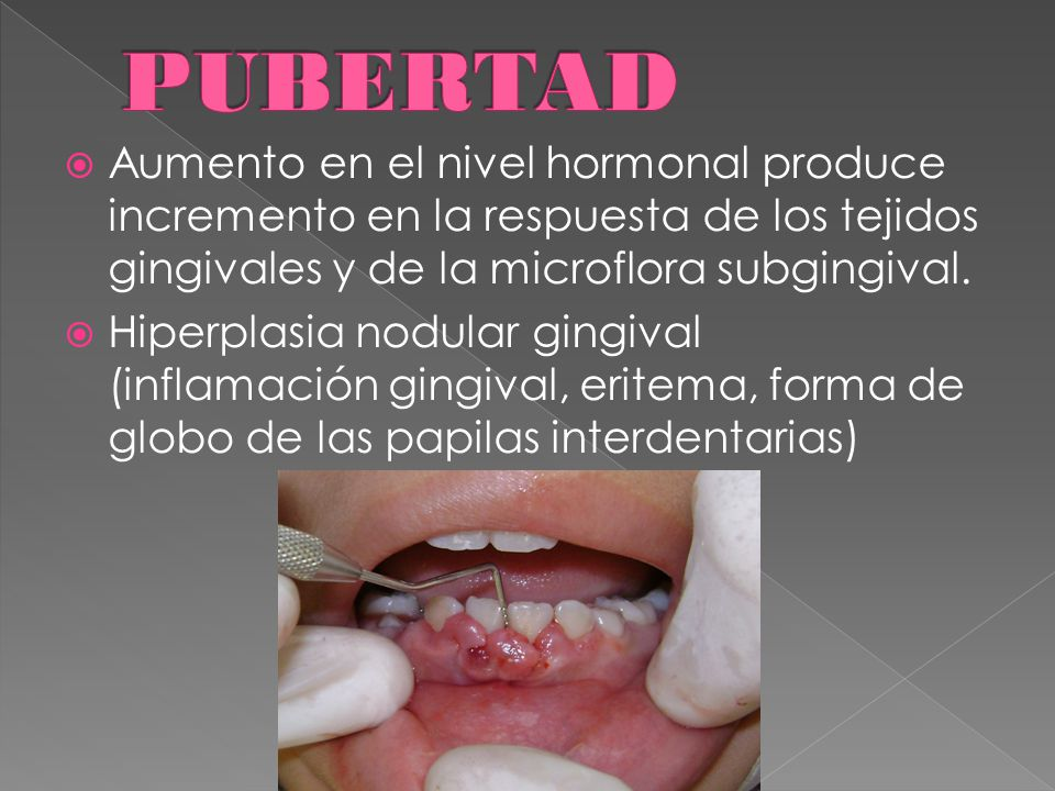  Aumento en el nivel hormonal produce incremento en la respuesta de los tejidos gingivales y de la microflora subgingival.