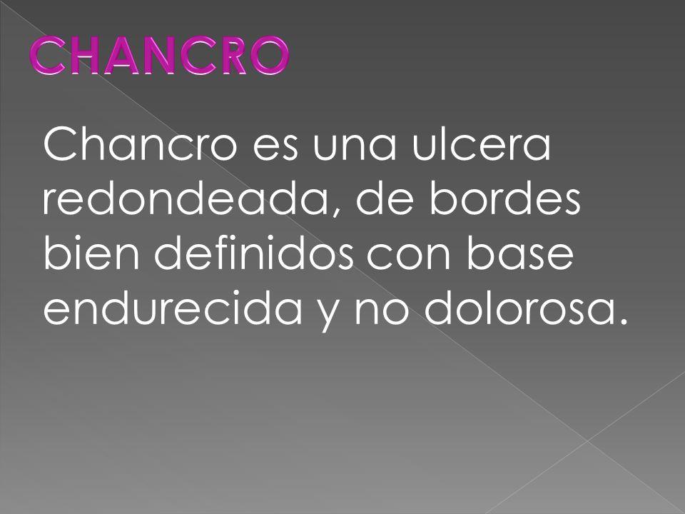 Chancro es una ulcera redondeada, de bordes bien definidos con base endurecida y no dolorosa.