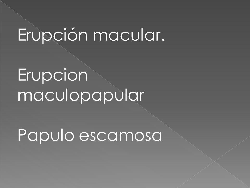 Erupción macular. Erupcion maculopapular Papulo escamosa