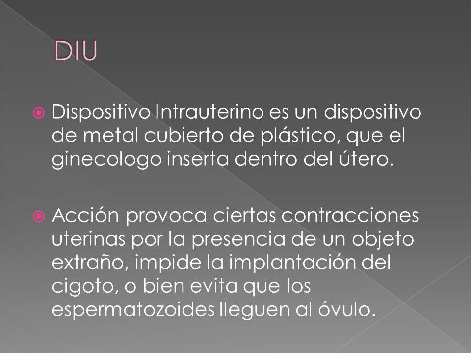  Dispositivo Intrauterino es un dispositivo de metal cubierto de plástico, que el ginecologo inserta dentro del útero.