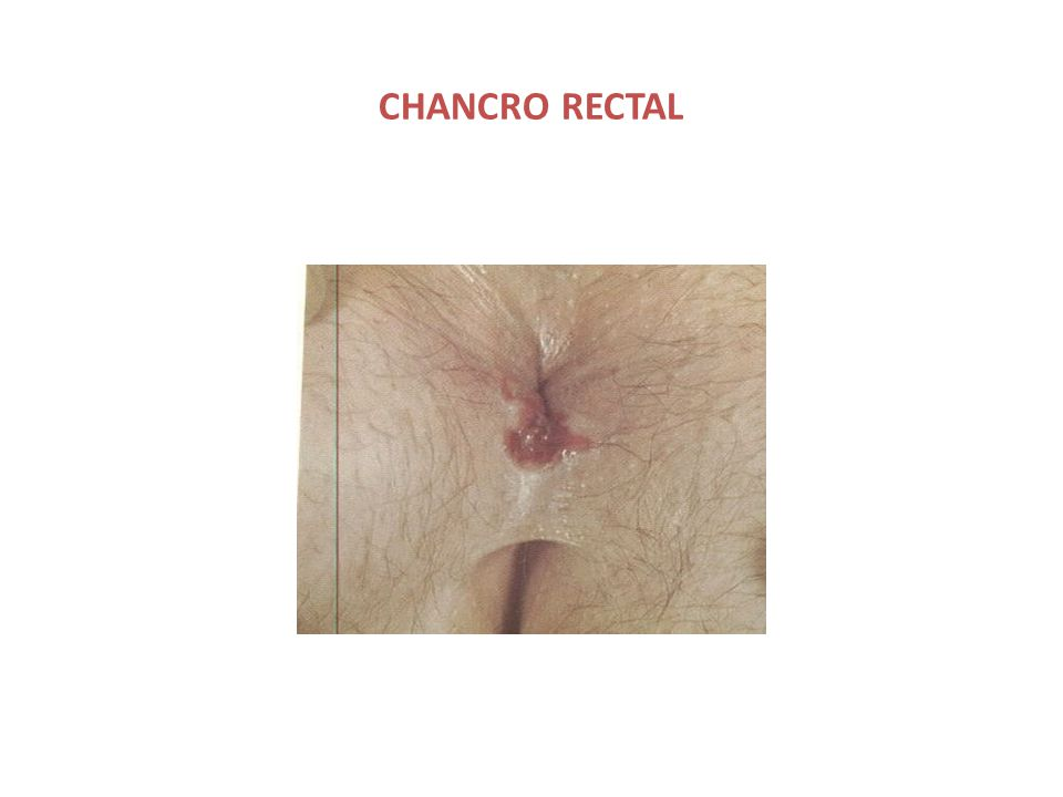 CHANCRO RECTAL