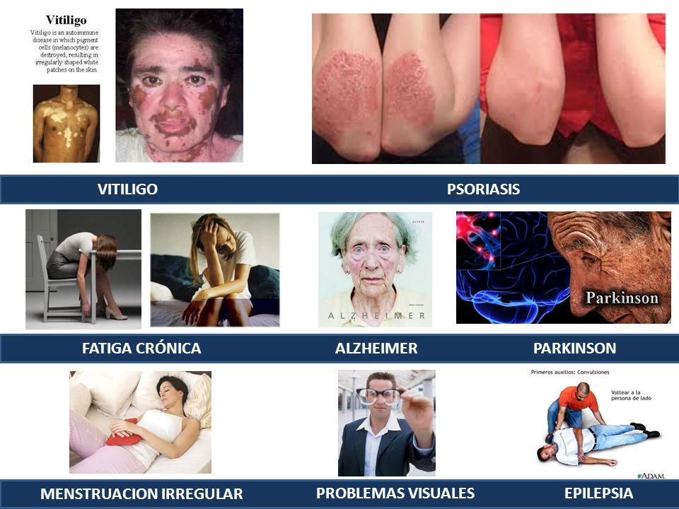 VITILIGO PSORIASIS FATIGA CRÓNICA ALZHEIMERPARKINSON MENSTRUACION IRREGULAR PROBLEMAS VISUALESEPILEPSIA