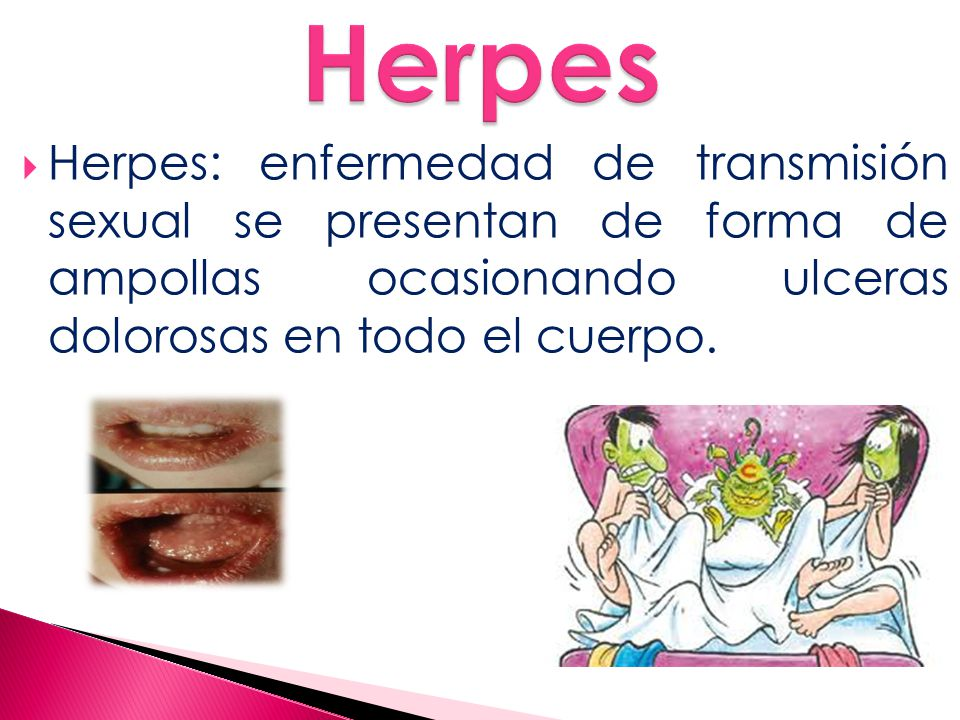  Herpes: enfermedad de transmisión sexual se presentan de forma de ampollas ocasionando ulceras dolorosas en todo el cuerpo.