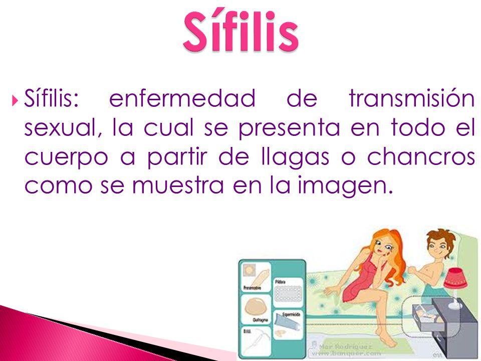 Sífilis: enfermedad de transmisión sexual, la cual se presenta en todo el cuerpo a partir de llagas o chancros como se muestra en la imagen.
