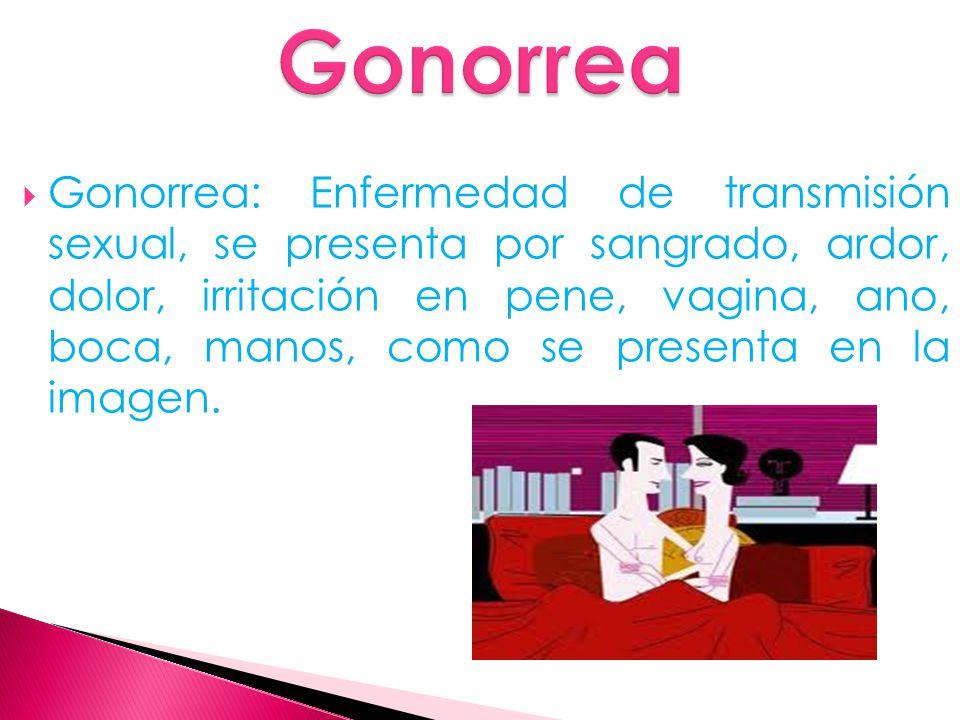  Gonorrea: Enfermedad de transmisión sexual, se presenta por sangrado, ardor, dolor, irritación en pene, vagina, ano, boca, manos, como se presenta en la imagen.