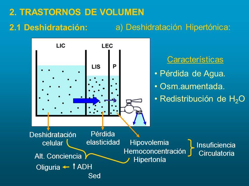 2.1 Deshidratación: a) Deshidratación Hipertónica: Hemoconcentración Insuficiencia Circulatoria Pérdida elasticidad Deshidratación celular ADH Oliguri