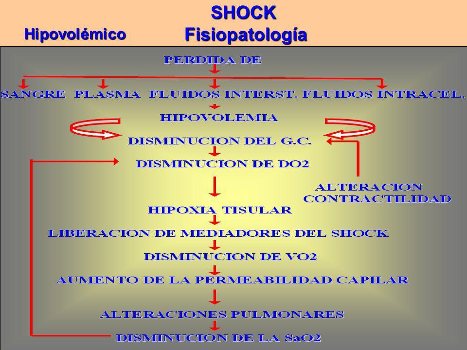 SHOCK Fisiopatología Fisiopatología Hipovolémico