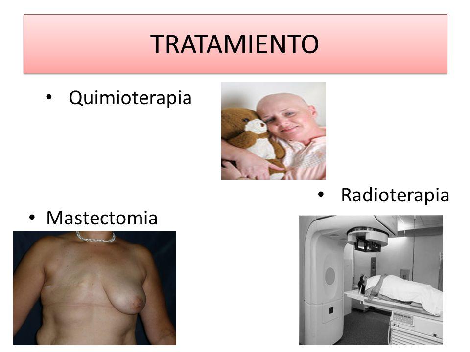TRATAMIENTO Mastectomia Quimioterapia Radioterapia