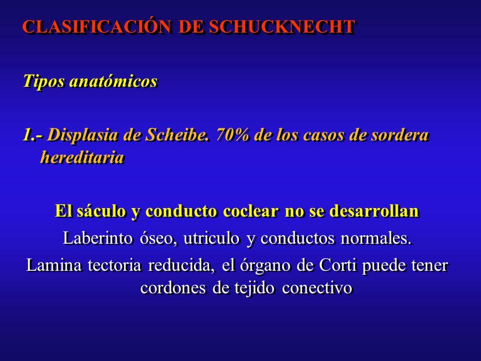 CLASIFICACIÓN DE SCHUCKNECHT Tipos anatómicos 1.- Displasia de Scheibe.