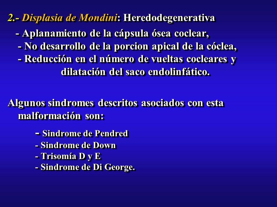 2.- Displasia de Mondini: Heredodegenerativa - Aplanamiento de la cápsula ósea coclear, - No desarrollo de la porcion apical de la cóclea, - Reducción en el número de vueltas cocleares y dilatación del saco endolinfático.
