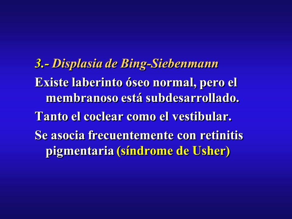 3.- Displasia de Bing-Siebenmann Existe laberinto óseo normal, pero el membranoso está subdesarrollado.