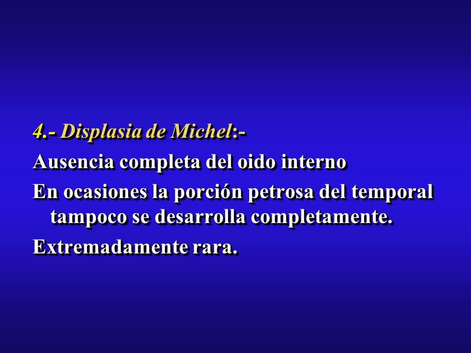 4.- Displasia de Michel:- Ausencia completa del oido interno En ocasiones la porción petrosa del temporal tampoco se desarrolla completamente.