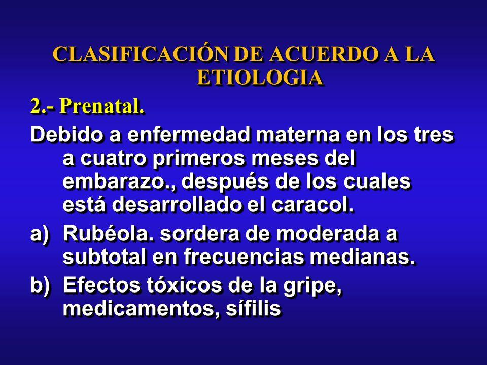 CLASIFICACIÓN DE ACUERDO A LA ETIOLOGIA 2.- Prenatal.