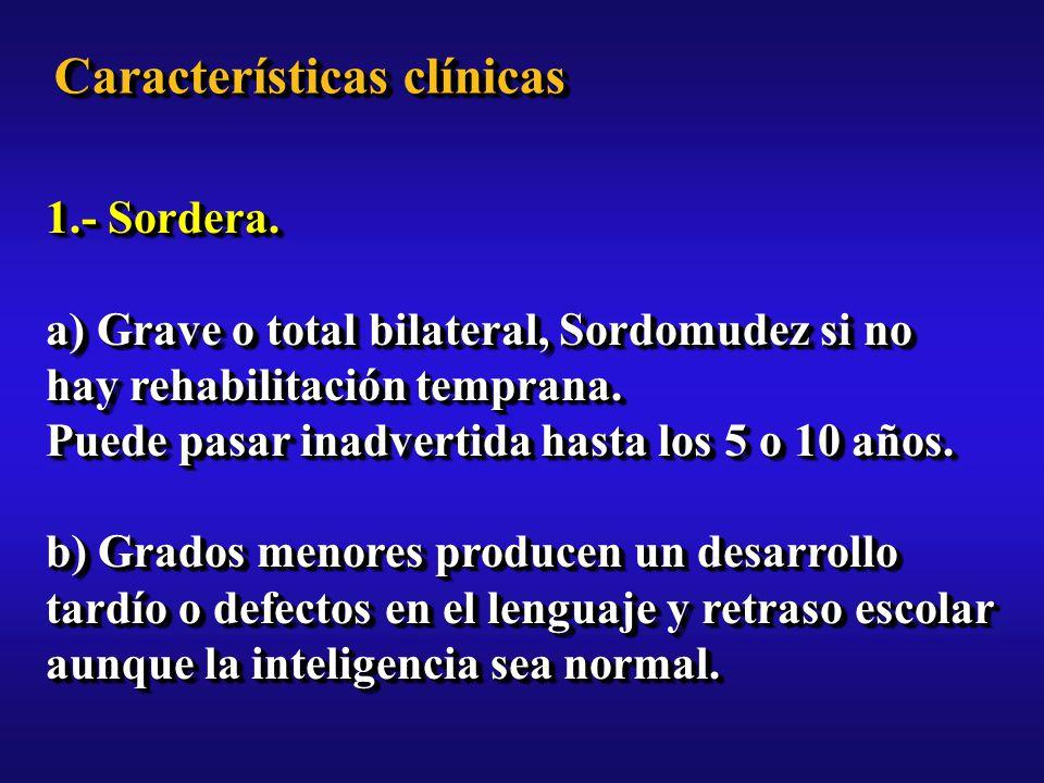 Características clínicas 1.- Sordera.