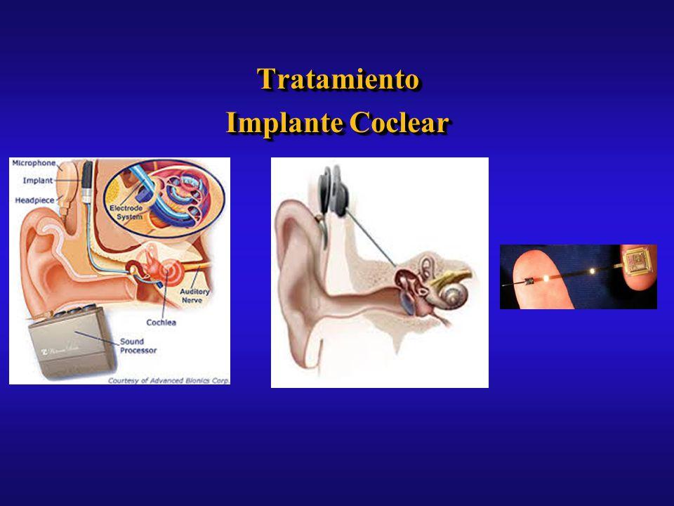 Tratamiento Implante Coclear Tratamiento