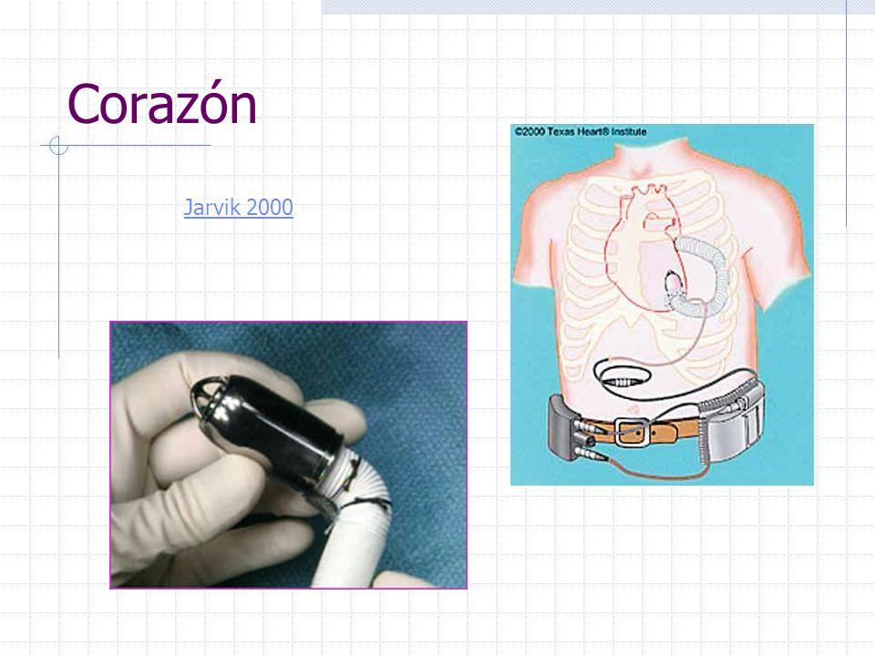 Corazón Jarvik 2000