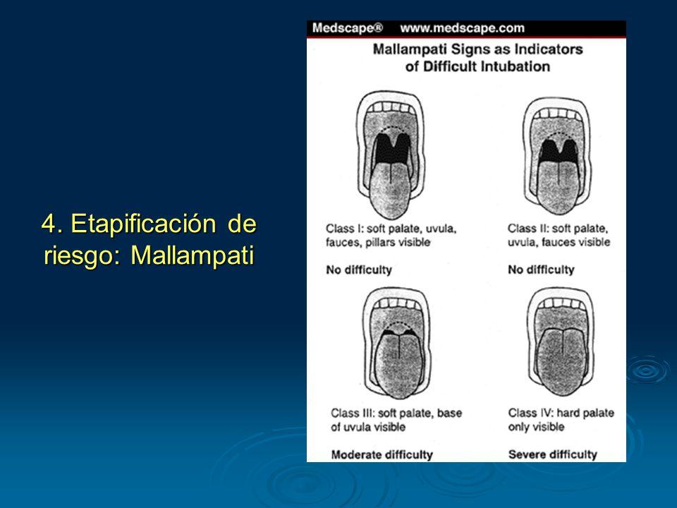 4. Etapificación de riesgo: Mallampati