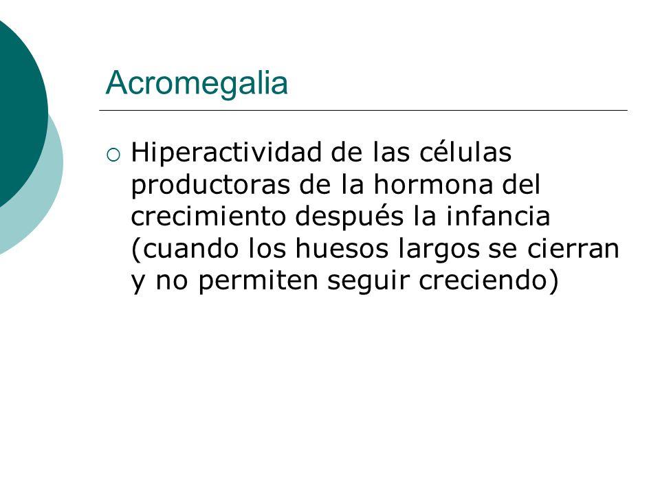 Acromegalia  Hiperactividad de las células productoras de la hormona del crecimiento después la infancia (cuando los huesos largos se cierran y no permiten seguir creciendo)