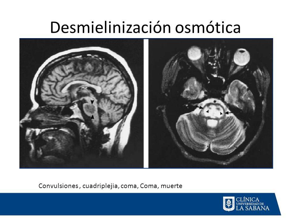 Desmielinización osmótica Convulsiones, cuadriplejia, coma, Coma, muerte