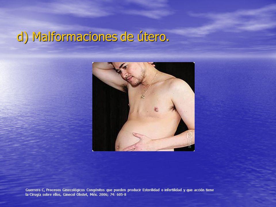 d) Malformaciones de útero.