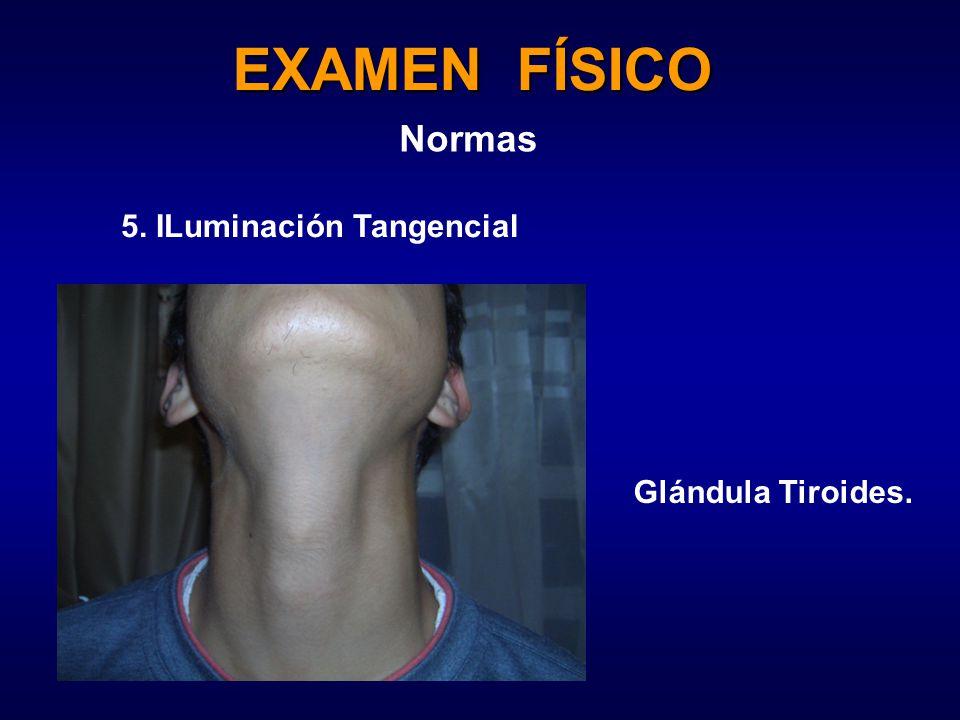 EXAMEN FÍSICO Normas 5. ILuminación Tangencial Glándula Tiroides.