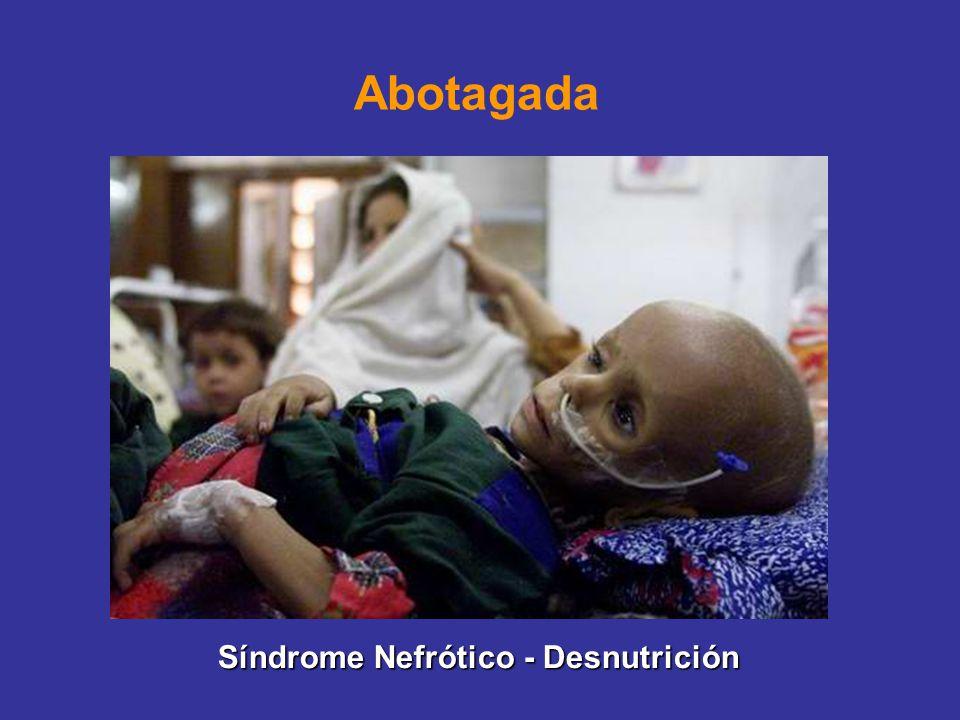 Abotagada Síndrome Nefrótico - Desnutrición