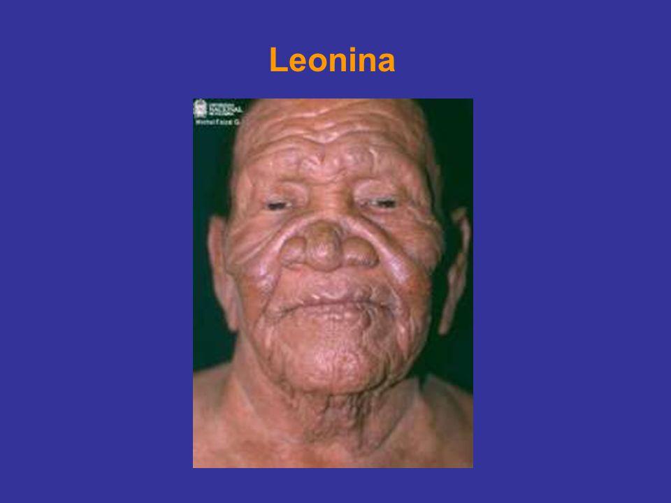 Leonina