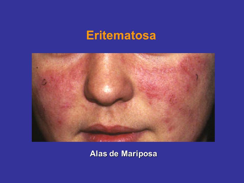 Eritematosa Alas de Mariposa