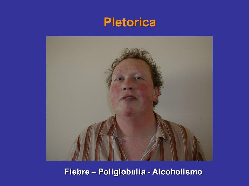 Pletorica Fiebre – Poliglobulia - Alcoholismo