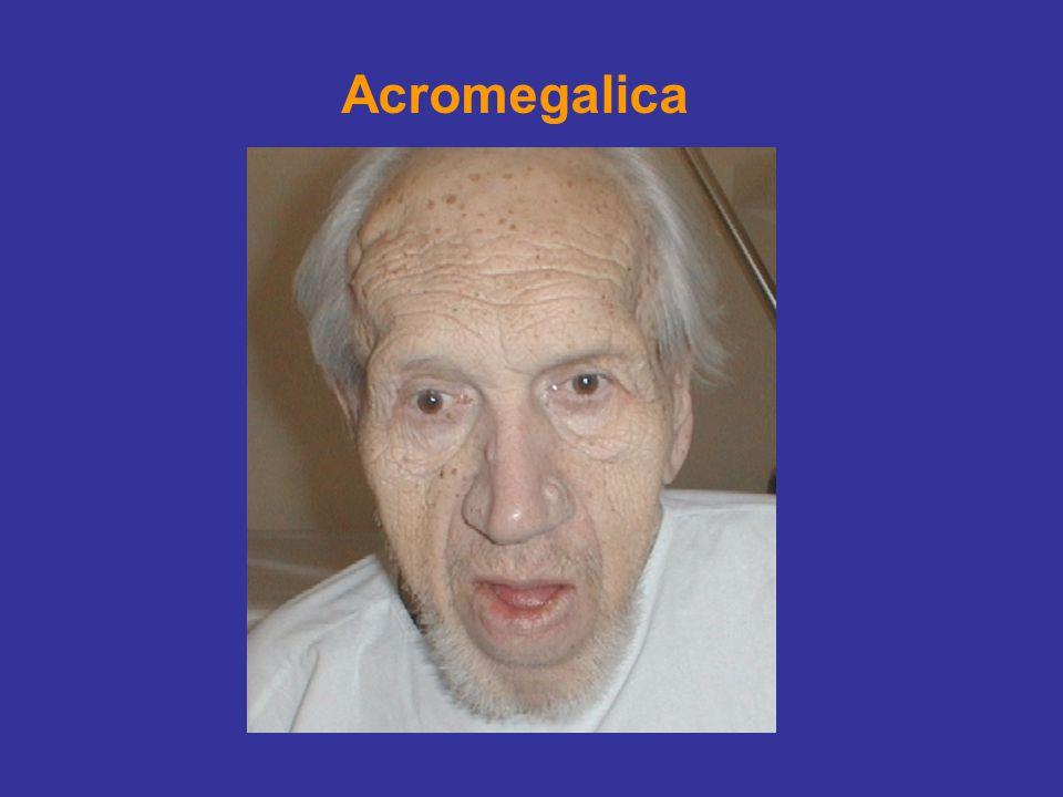 Acromegalica