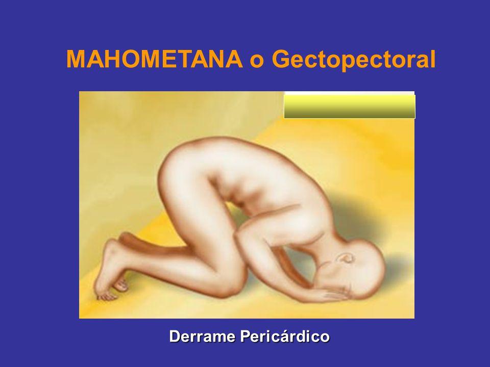MAHOMETANA o Gectopectoral Derrame Pericárdico
