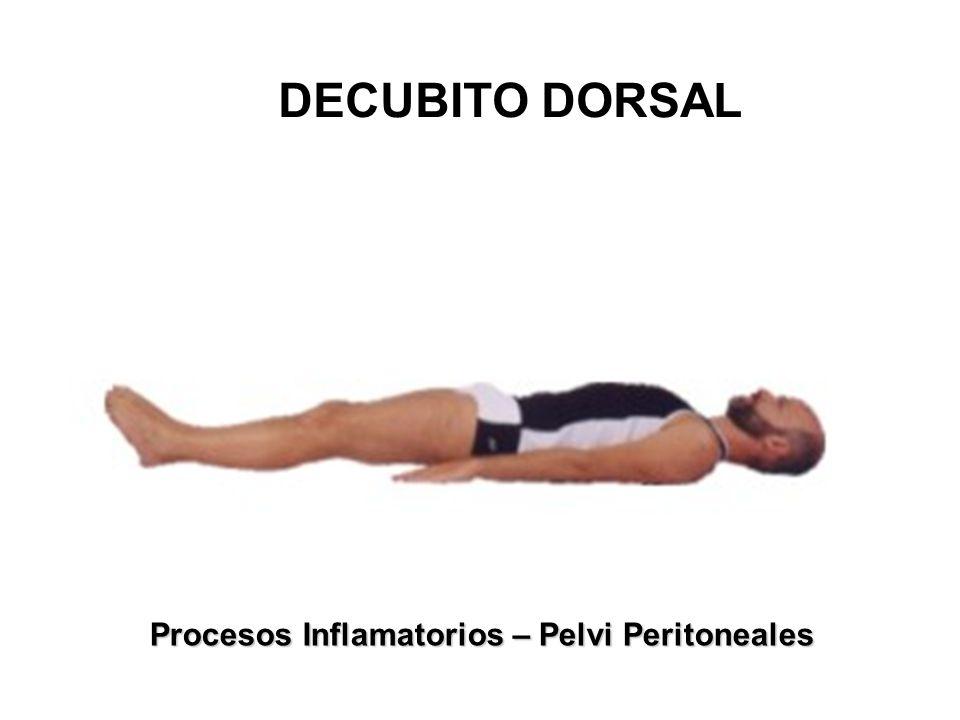 DECUBITO DORSAL Procesos Inflamatorios – Pelvi Peritoneales