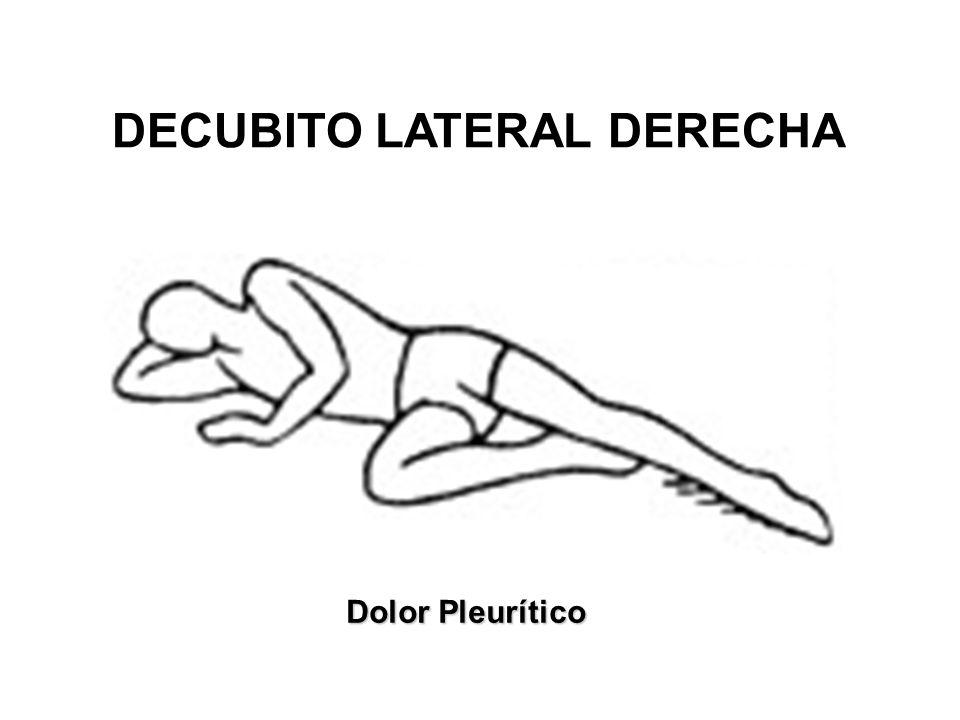 DECUBITO LATERAL DERECHA Dolor Pleurítico
