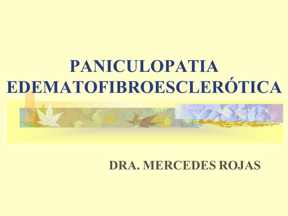 PANICULOPATIA EDEMATOFIBROESCLERÓTICA DRA. MERCEDES ROJAS