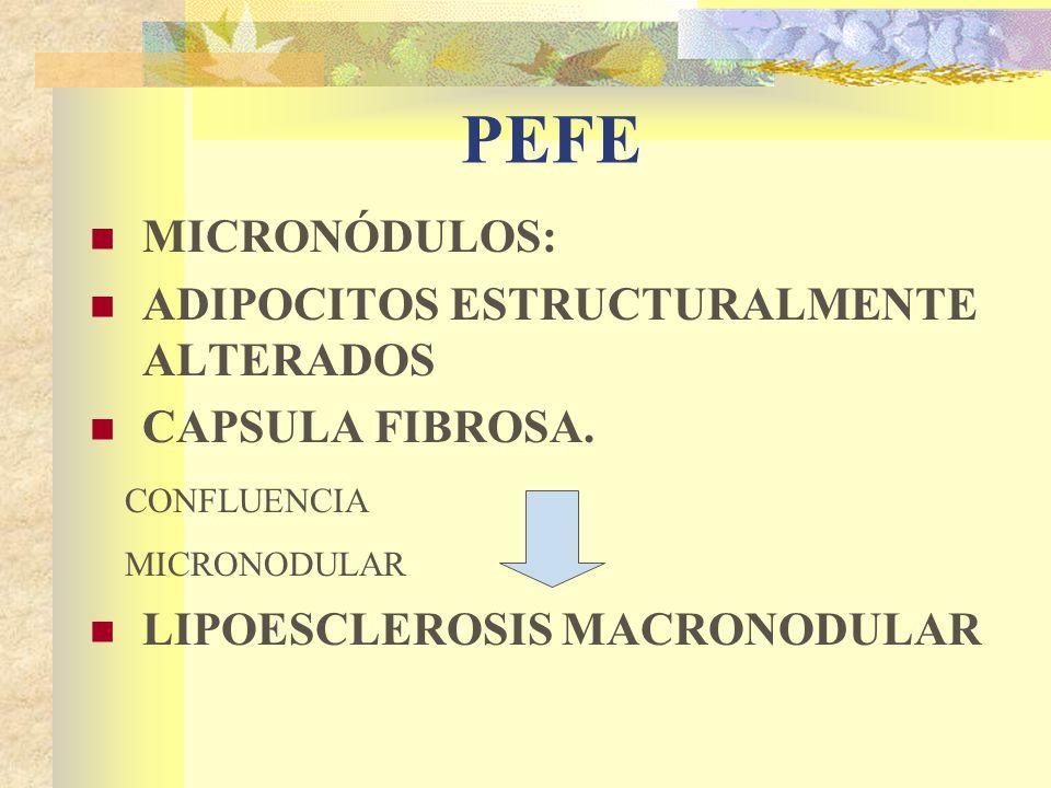 PEFE MICRONÓDULOS: ADIPOCITOS ESTRUCTURALMENTE ALTERADOS CAPSULA FIBROSA.