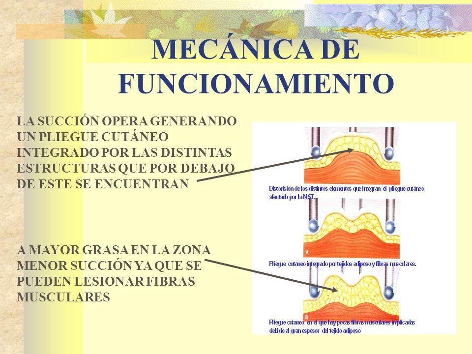 MECÁNICA DE FUNCIONAMIENTO LA SUCCIÓN OPERA GENERANDO UN PLIEGUE CUTÁNEO INTEGRADO POR LAS DISTINTAS ESTRUCTURAS QUE POR DEBAJO DE ESTE SE ENCUENTRAN A MAYOR GRASA EN LA ZONA MENOR SUCCIÓN YA QUE SE PUEDEN LESIONAR FIBRAS MUSCULARES