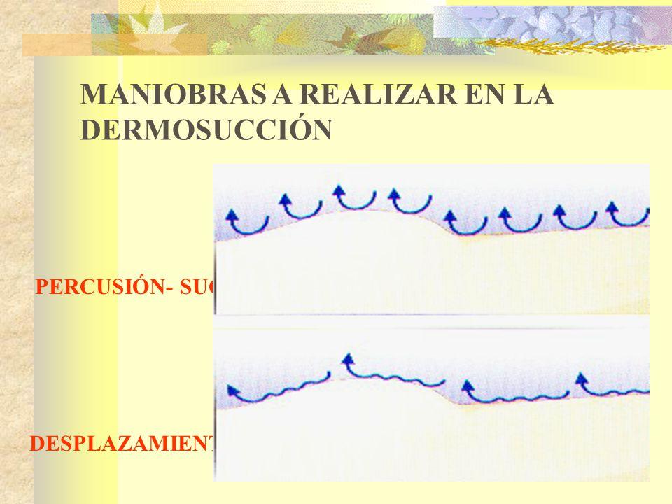 PERCUSIÓN- SUCCIÓN DESPLAZAMIENTO-VIBRACIÓN MANIOBRAS A REALIZAR EN LA DERMOSUCCIÓN