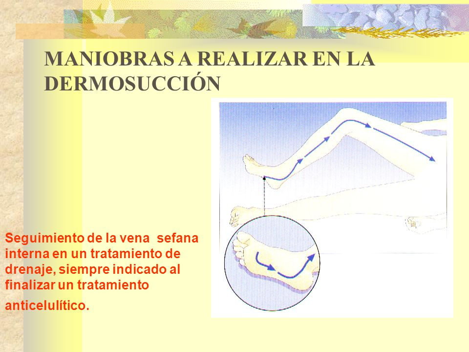Seguimiento de la vena sefana interna en un tratamiento de drenaje, siempre indicado al finalizar un tratamiento anticelulítico.