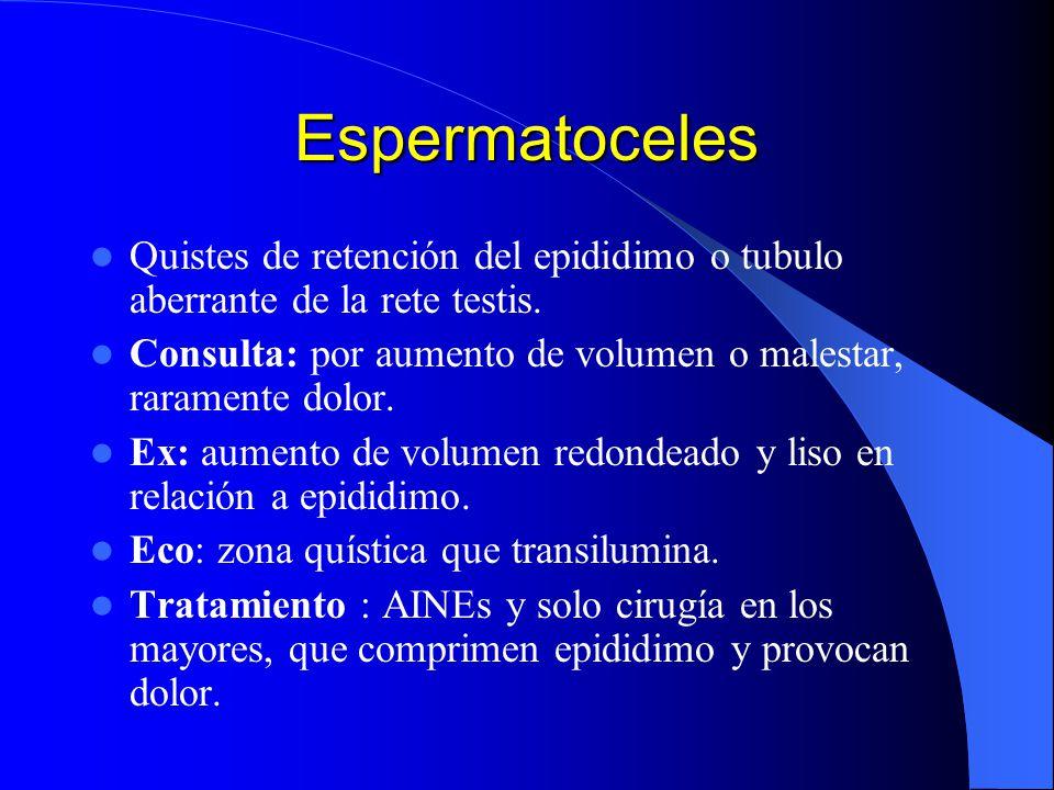 Espermatoceles Quistes de retención del epididimo o tubulo aberrante de la rete testis. Consulta: por aumento de volumen o malestar, raramente dolor.