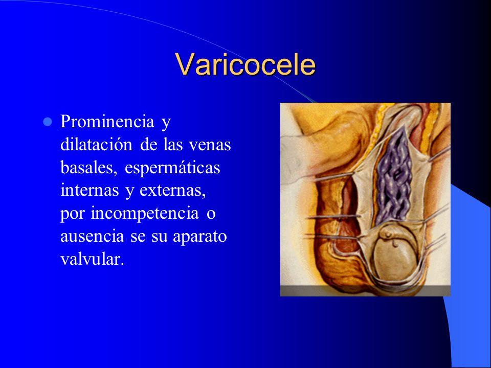 Varicocele Prominencia y dilatación de las venas basales, espermáticas internas y externas, por incompetencia o ausencia se su aparato valvular.