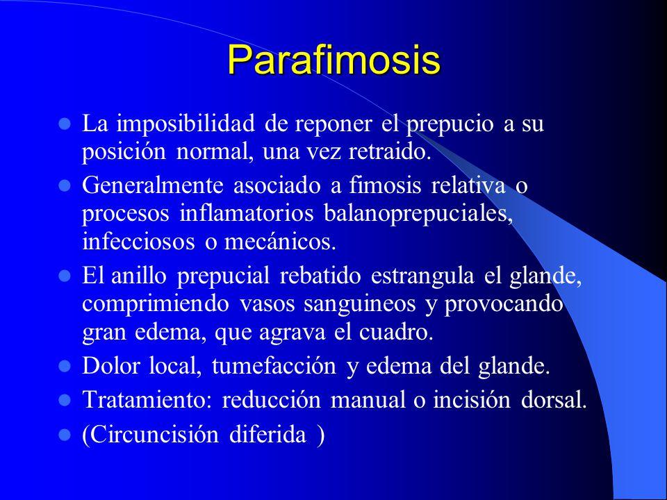 Parafimosis La imposibilidad de reponer el prepucio a su posición normal, una vez retraido. Generalmente asociado a fimosis relativa o procesos inflam