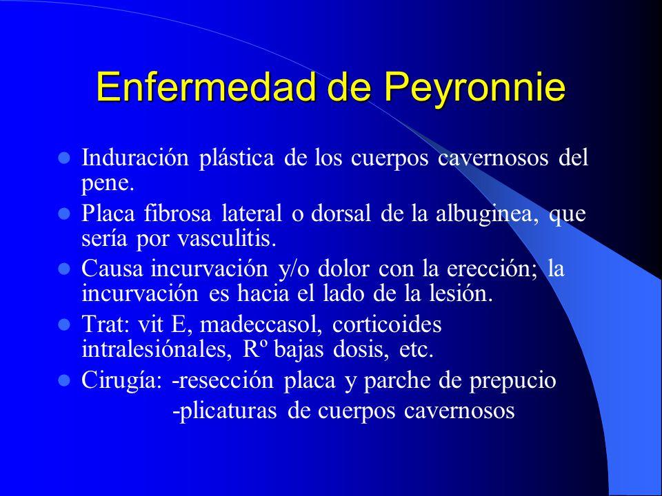 Enfermedad de Peyronnie Induración plástica de los cuerpos cavernosos del pene. Placa fibrosa lateral o dorsal de la albuginea, que sería por vasculit