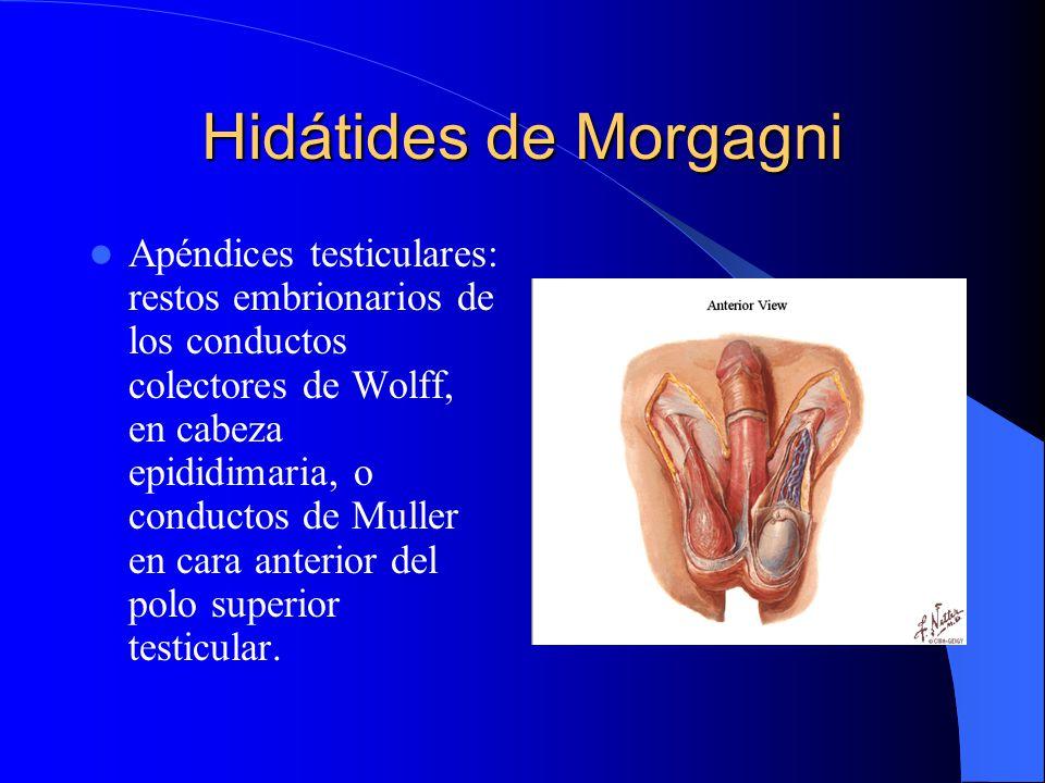 Hidátides de Morgagni Apéndices testiculares: restos embrionarios de los conductos colectores de Wolff, en cabeza epididimaria, o conductos de Muller
