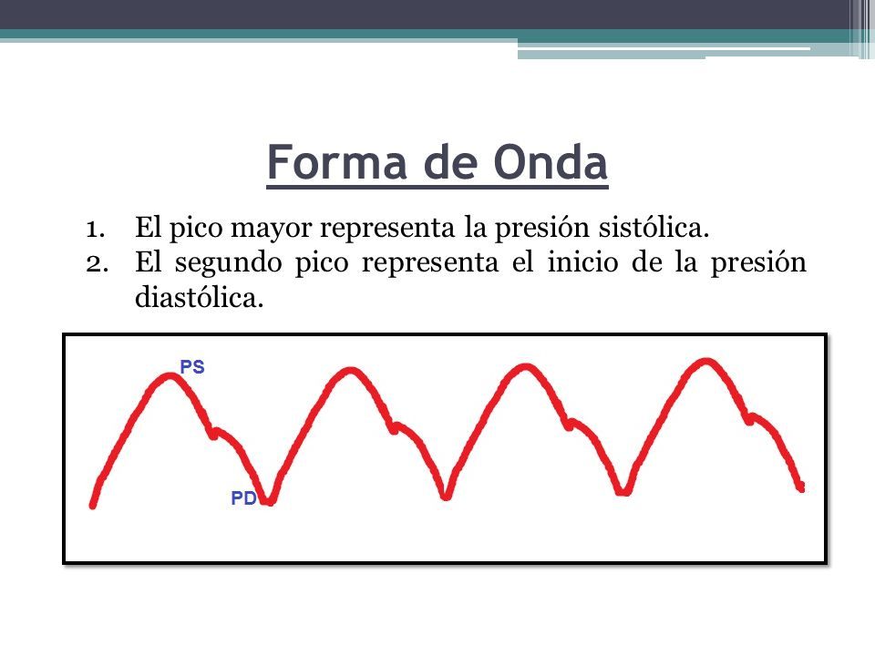 Forma de Onda 1.El pico mayor representa la presión sistólica.