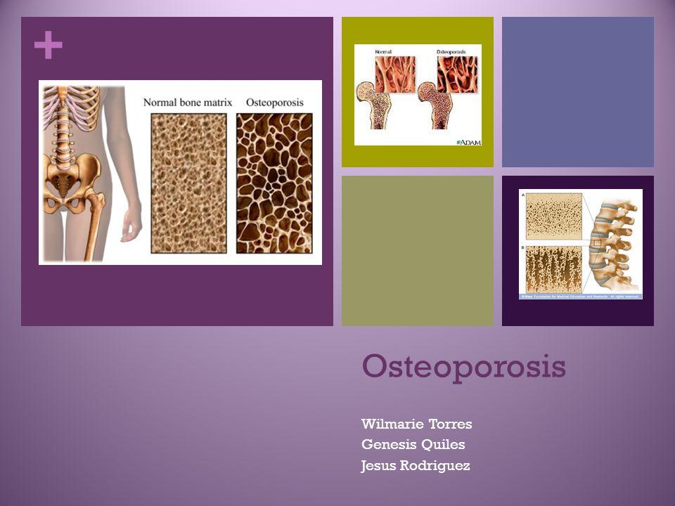 + Osteoporosis Wilmarie Torres Genesis Quiles Jesus Rodriguez