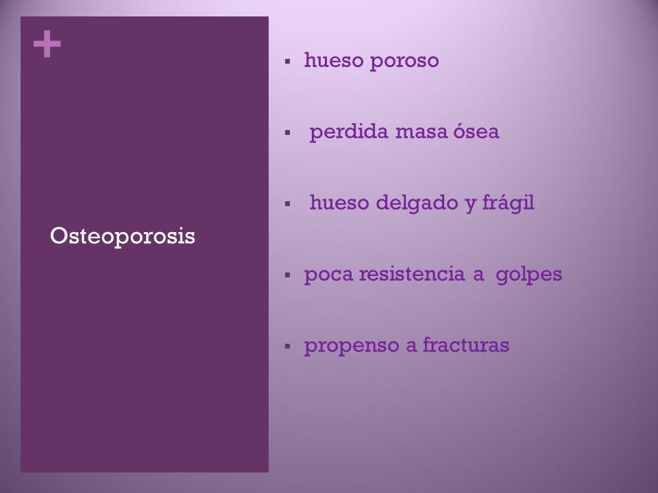 + Osteoporosis  hueso poroso  perdida masa ósea  hueso delgado y frágil  poca resistencia a golpes  propenso a fracturas
