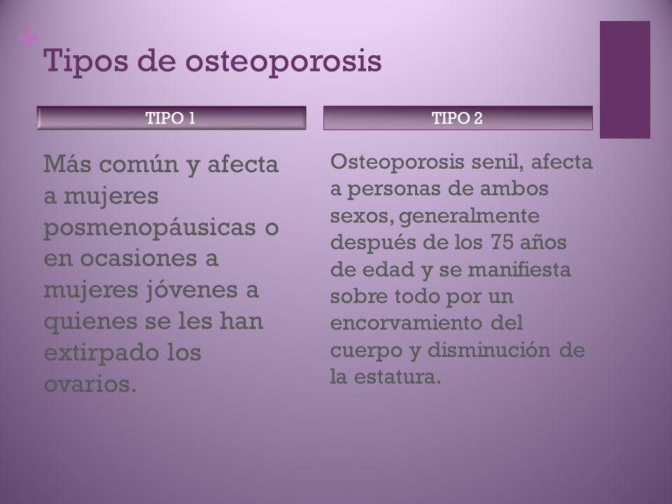 + Tipos de osteoporosis Más común y afecta a mujeres posmenopáusicas o en ocasiones a mujeres jóvenes a quienes se les han extirpado los ovarios.