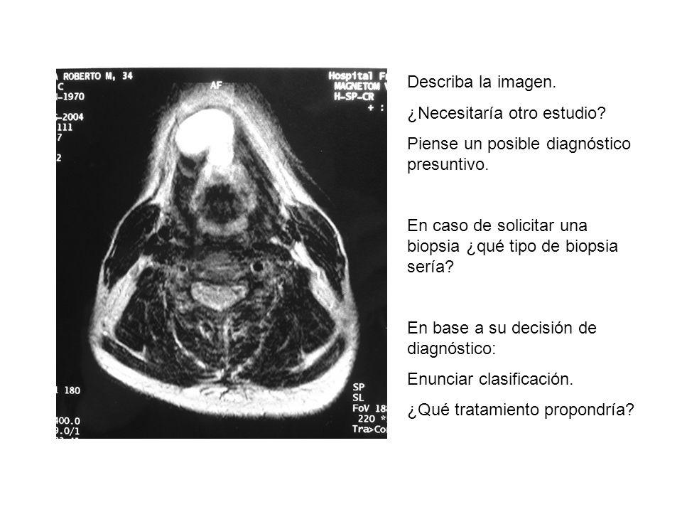 Describa la imagen. ¿Necesitaría otro estudio. Piense un posible diagnóstico presuntivo.