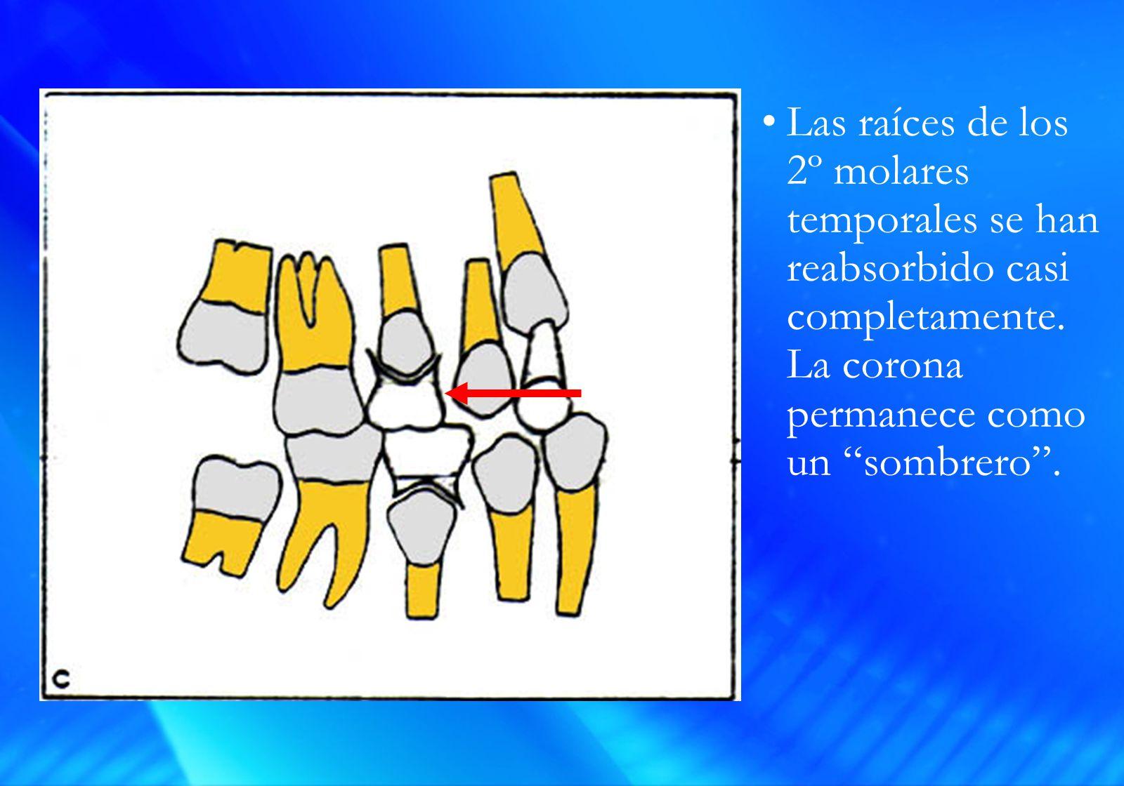 Las raíces de los 2º molares temporales se han reabsorbido casi completamente.